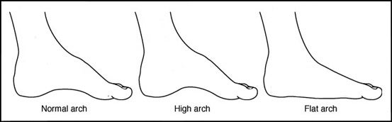 Arch Height Works Best As An Indicator Of Foot Motion For People At The Extremes However There Are With High Arches That Over Ate And