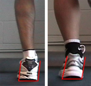 Left Foot Displaying a Moderate Level of Over-Pronation