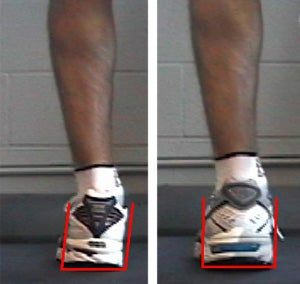 Learning Center: How to Determine Pronation